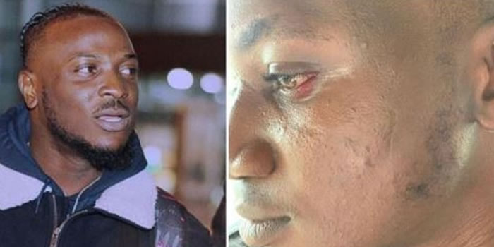 how-davido-s-artist-peruzzi-slapped-and-assaulted-me-in-bayelsa